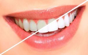 Diş-beyazlatma-ile-ilgili-fotograf-UzmanTedavi.net_